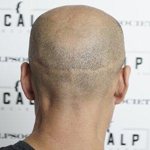 scar-lines